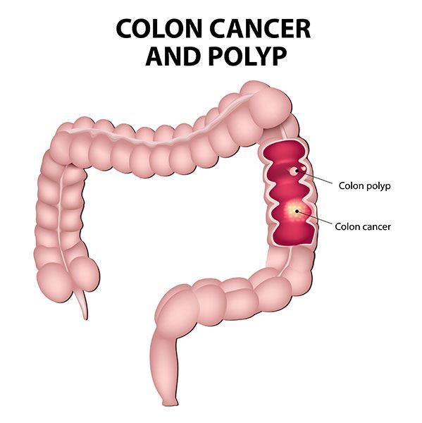 What Is Colorectal Cancer The Colorectal Cancer Alliance