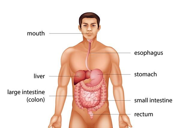 colorectal cancer is)